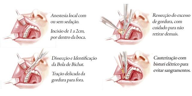 bichectomia-cirurgia-afina