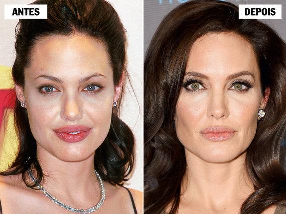 bichectomia-cirurgia-que-afina-o-rosto-vira-moda35-1-thumb-570
